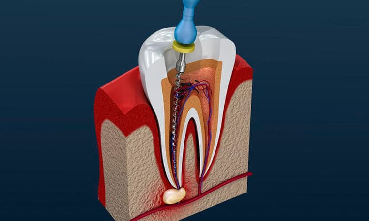 Root Canal Therapy in Denville, NJ | Green Leaf Dentistry